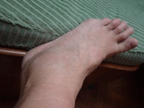 Hmmmm....today's running injury